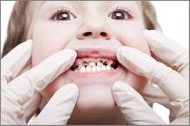 ليست كل الأطعمة مسؤولة عن تسوس الأسنان