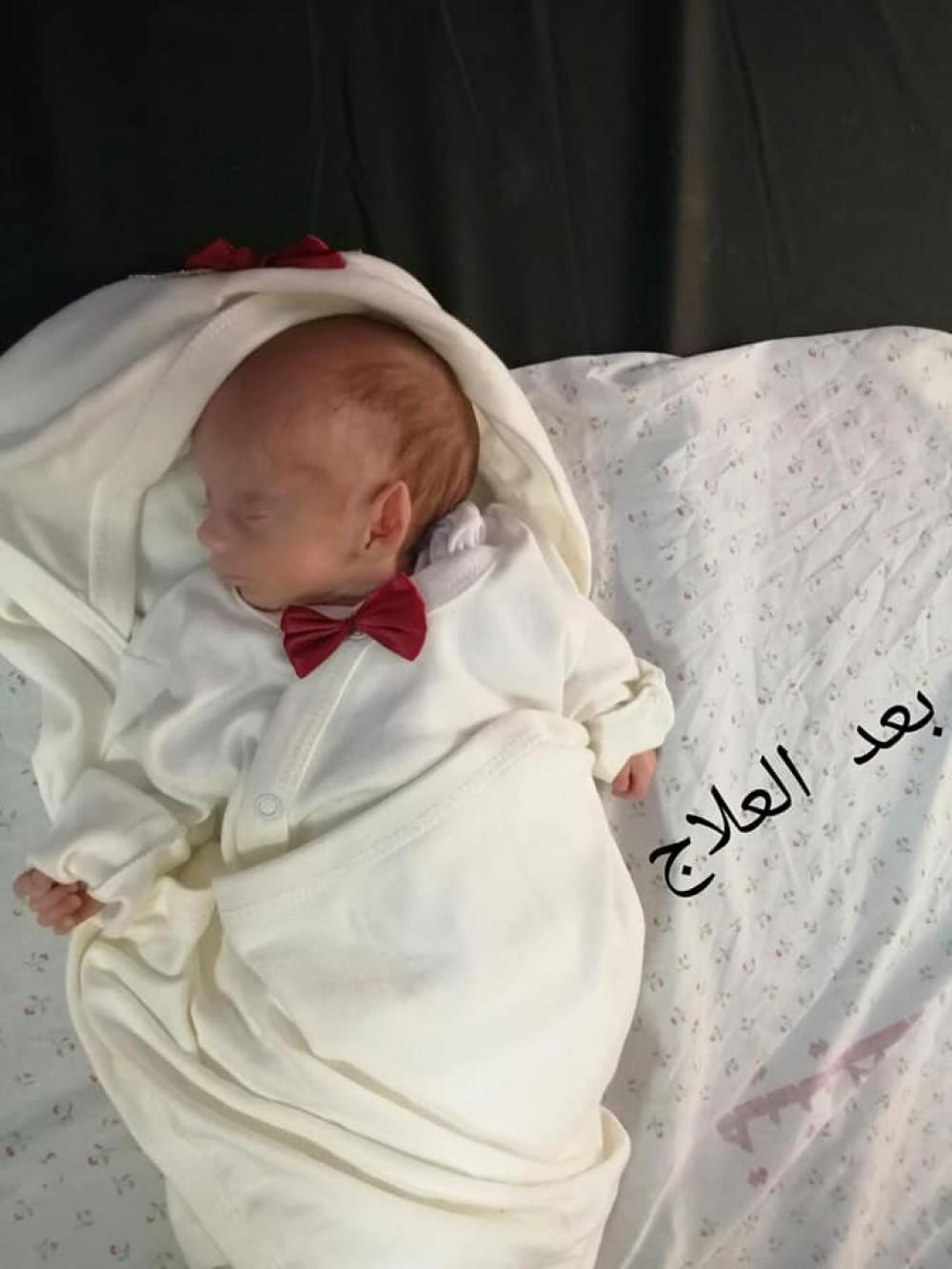 مستشفى ناصر الطبي تتعامل مع طفل حديث الولادة أقل من كيلو