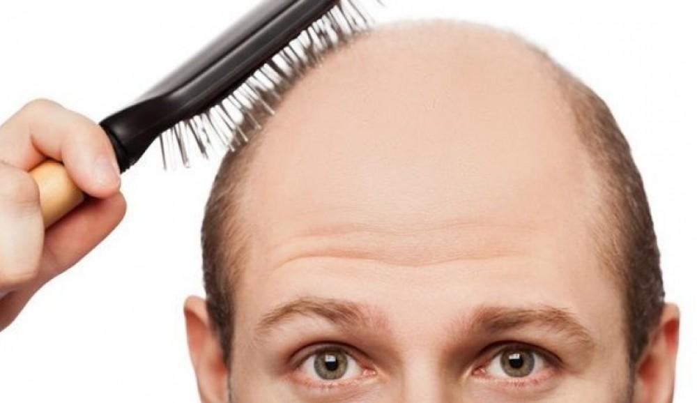 اكتشاف مذهل.. نوع من الفطر يمنع تساقط الشعر!