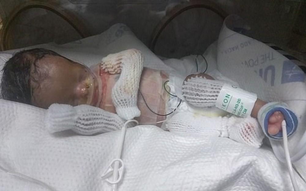 طفل ينجو بإعجوبة بعدما ولد دون جلد