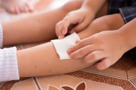 علاج حساسية لدغات الحشرات عند الطفل