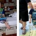 طفل يستعيد القدرة على المشي بفضل جراحة رائدة