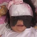 طفلة تولد بقناع