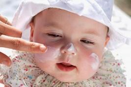 فى الحر.. نصائح لحماية طفلك من التسلخات والحساسية
