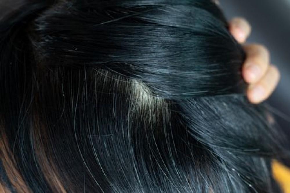 10 أطعمة صحية هتساعدك فى علاج تساقط الشعر من البيت