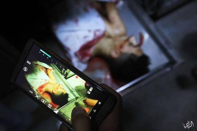 #صور للطفلين أمير النمرة ولؤي كحيل بمشفى الشفاء عقب استشهادهما بقصف الاحتلال لمبنى الكتيبة