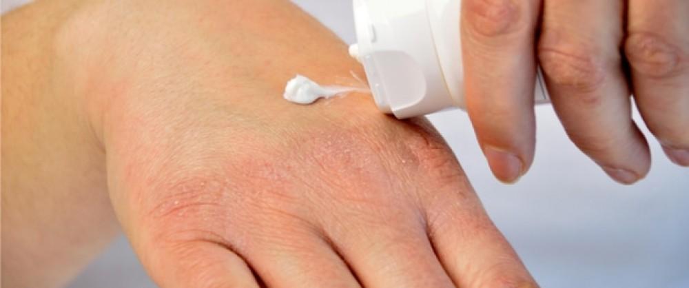 6 مشاكل جلدية مرتبطة بالحر الشديد..خلى بالك منها