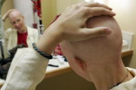 نصيحة ليحمي الخاضعون للعلاج الكيماوي شعر رأسهم