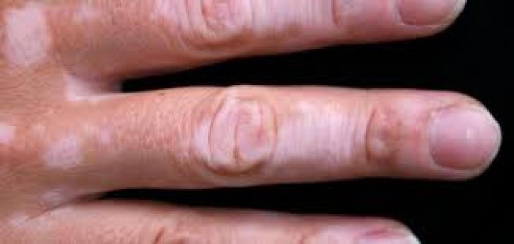تعرف على أنواع مختلفة من اضطرابات صبغة الجلد ونصائح لعلاجها