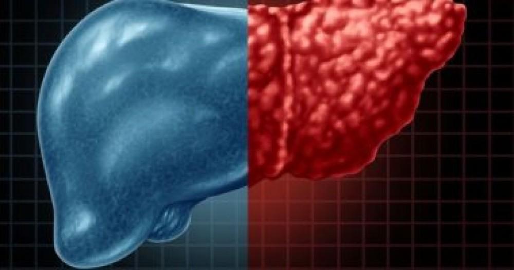 لمرضى الكبد الدهنى.. نصائح هامة للوقاية من القاتل الصامت