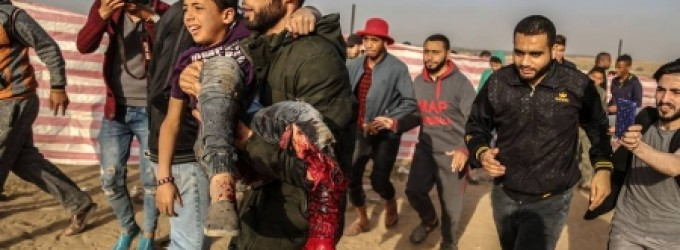 الطفل نوفل بعد إصابته برصاص الاحتلال