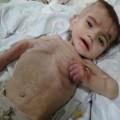 أحد ضحايا الجوع في سوريا