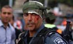 عنصر من شرطة الاحتلال أصيب خلال مواجهات سابقة